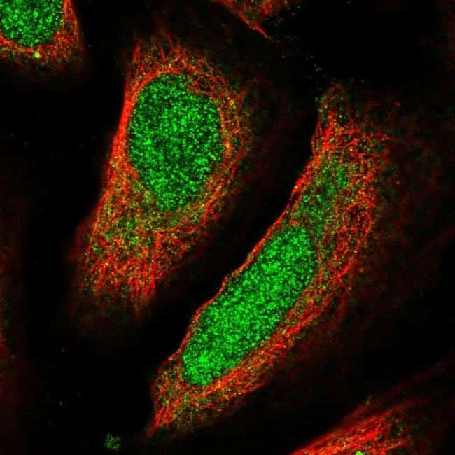 Ubiquilin 4 Antibody in Immunofluorescence (IF)