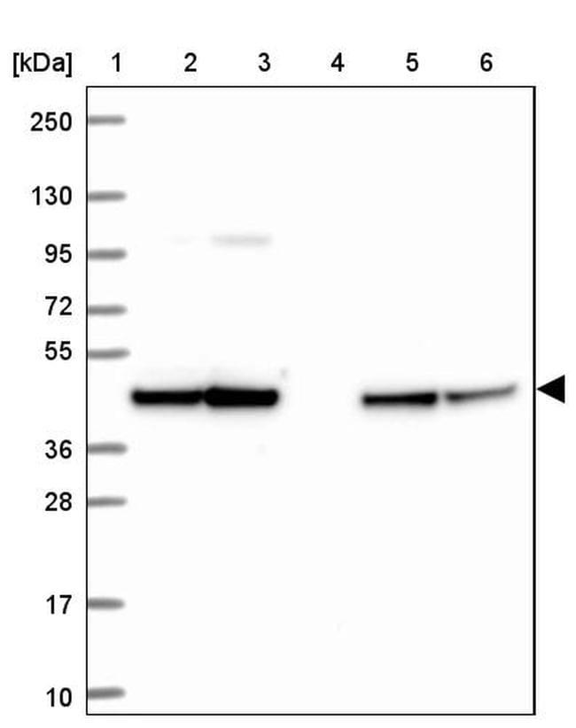 STOML2 Antibody in Western Blot (WB)