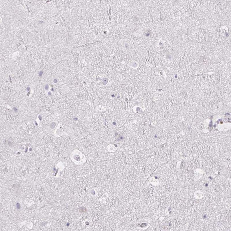 FDX1 Antibody in Immunohistochemistry (IHC)