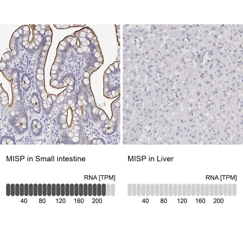 C19orf21 Antibody in Relative expression