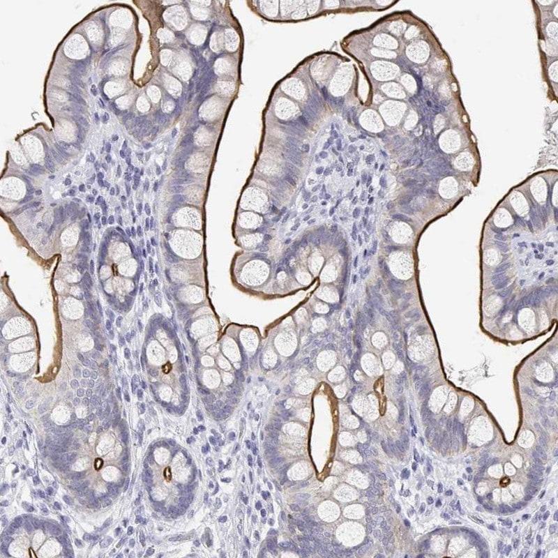 C19orf21 Antibody in Immunohistochemistry (IHC)