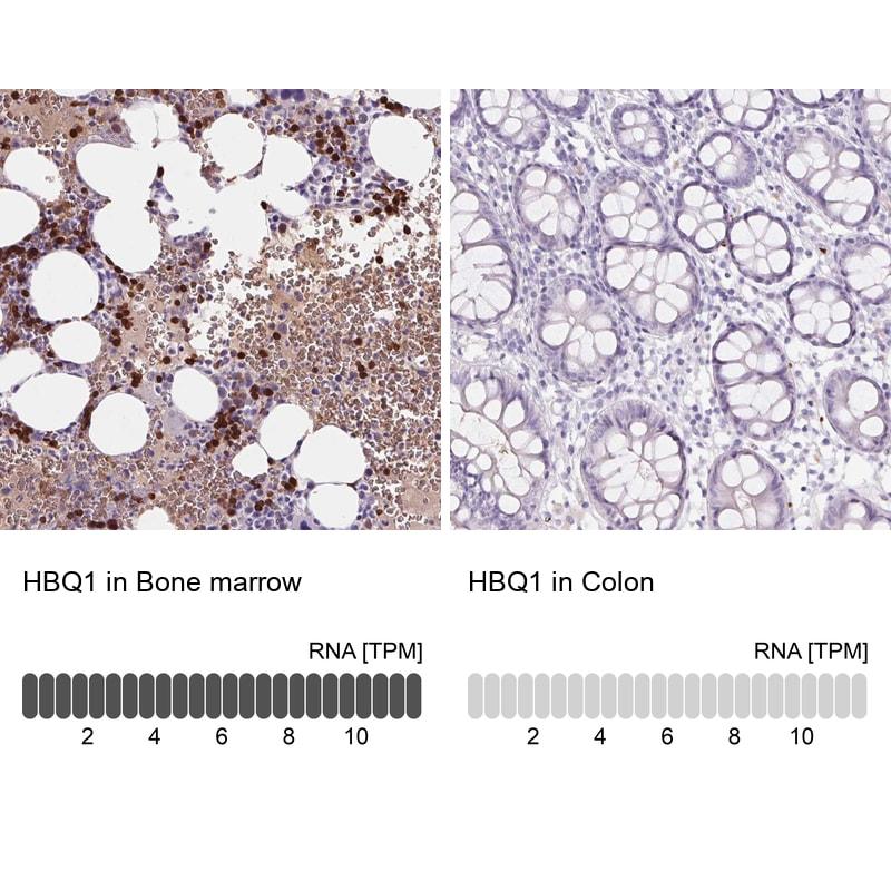 HBQ1 Antibody in Immunohistochemistry (IHC)