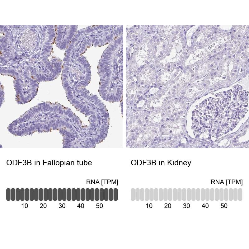 ODF3B Antibody in Relative expression