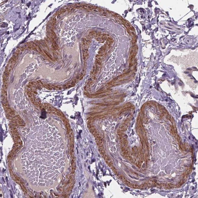 CLN3 Antibody in Immunohistochemistry (IHC)
