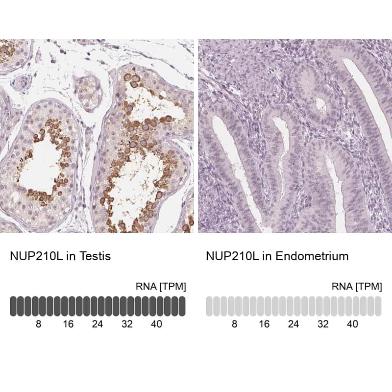 NUP210L Antibody in Relative expression