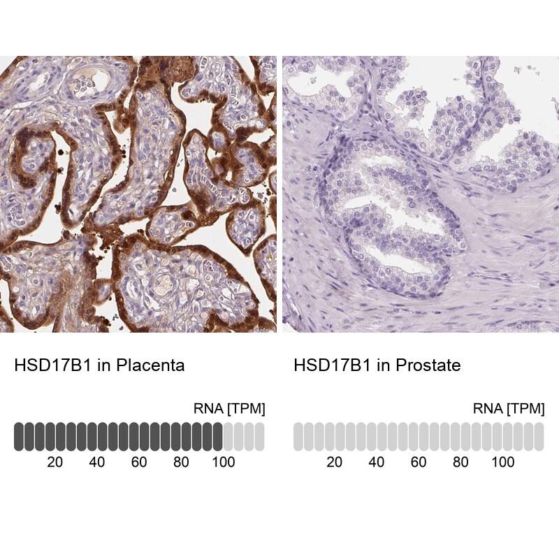 HSD17B1 Antibody in Immunohistochemistry (IHC)