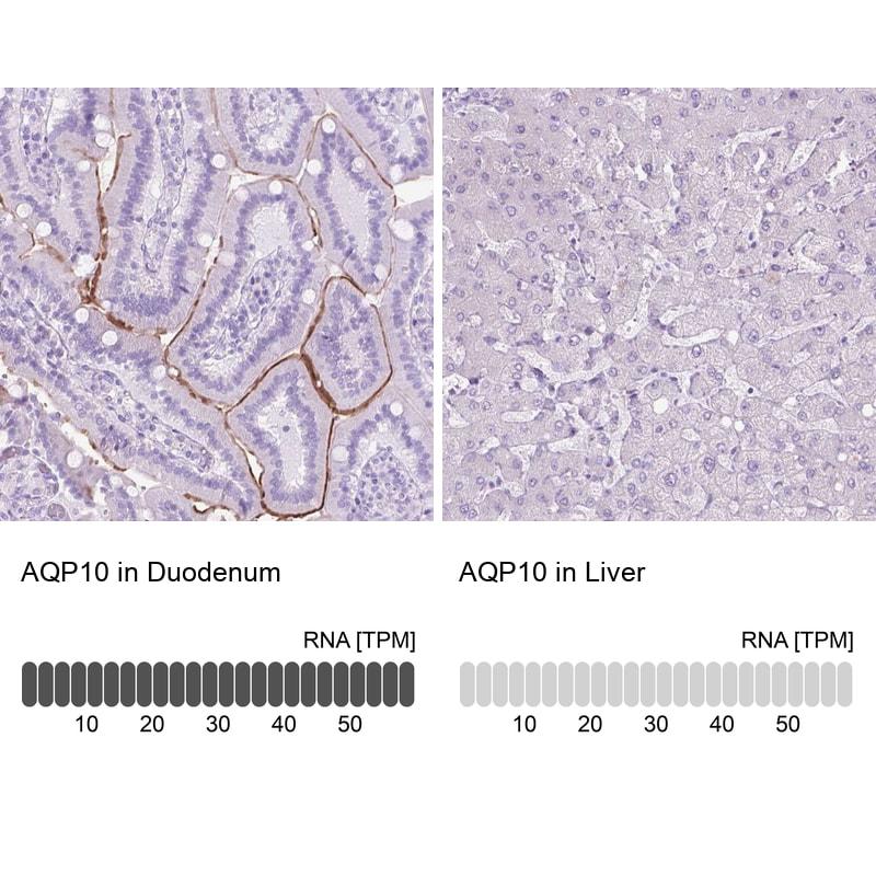 Aquaporin 10 Antibody in Relative expression