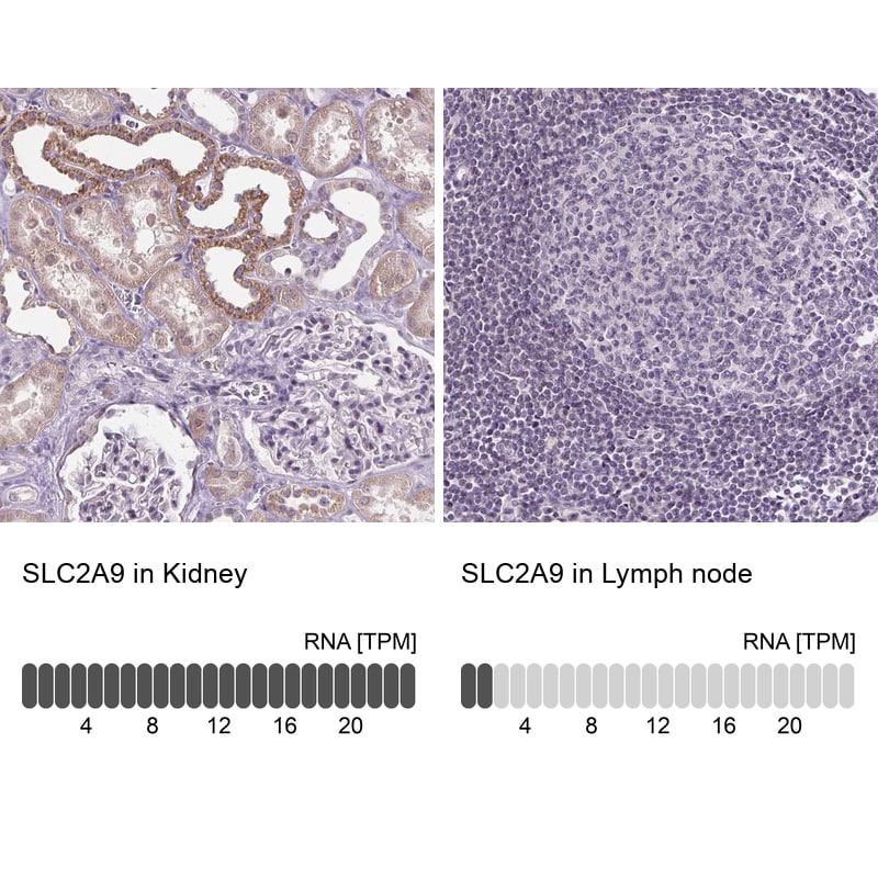 GLUT9 Antibody in Relative expression