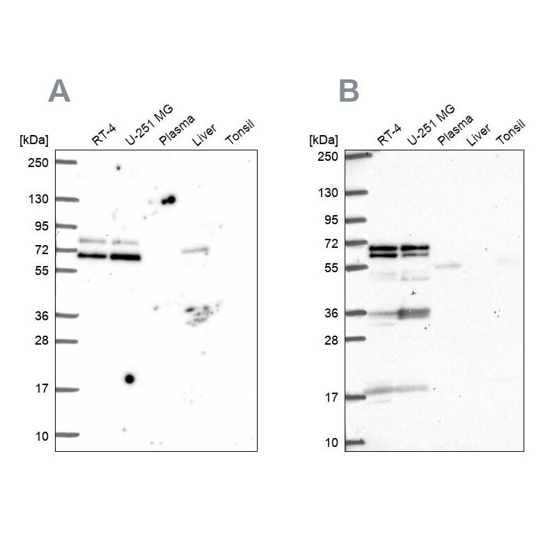GTF3C5 Antibody in Western Blot (WB)