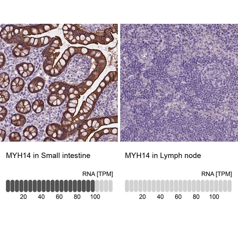 MYH14 Antibody in Relative expression