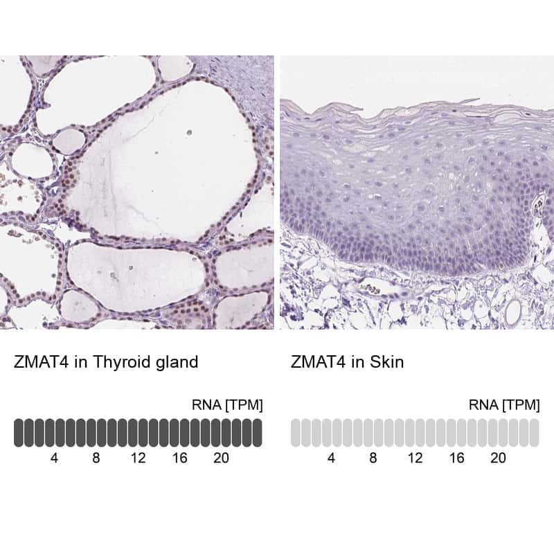 ZMAT4 Antibody in Relative expression