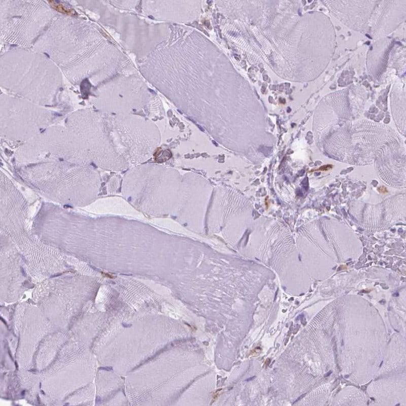 Coronin 1B Antibody in Immunohistochemistry (IHC)