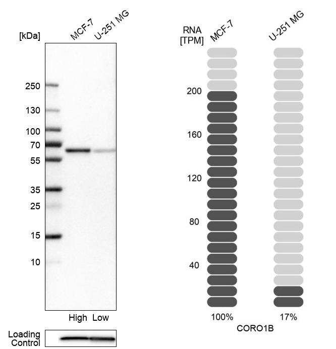 Coronin 1B Antibody in Relative expression