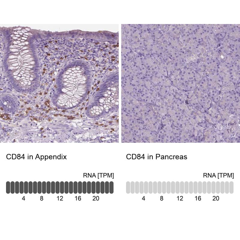 CD84 Antibody in Relative expression
