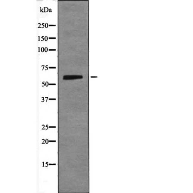 Phospho-SMAD1 (Ser214) Antibody in Western Blot (WB)