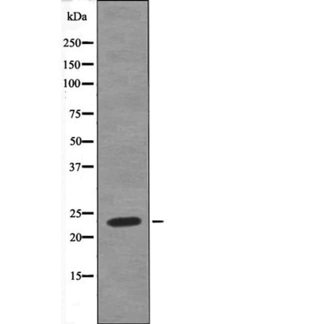 Phospho-HAND1 (Ser98) Antibody in Western Blot (WB)