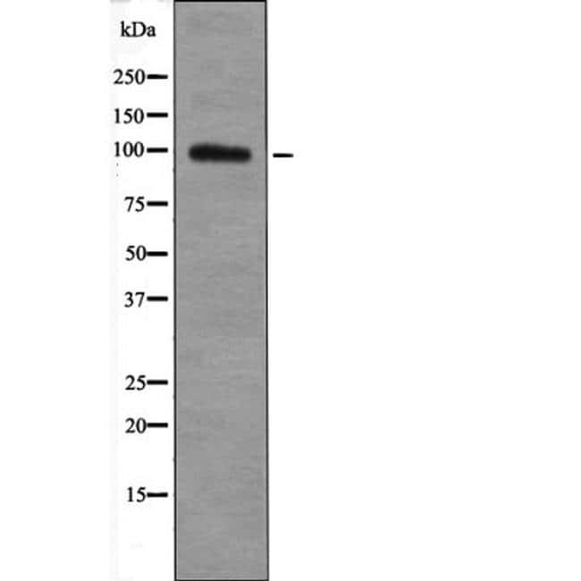 Phospho-TGFBR3 (Thr842) Antibody in Western Blot (WB)
