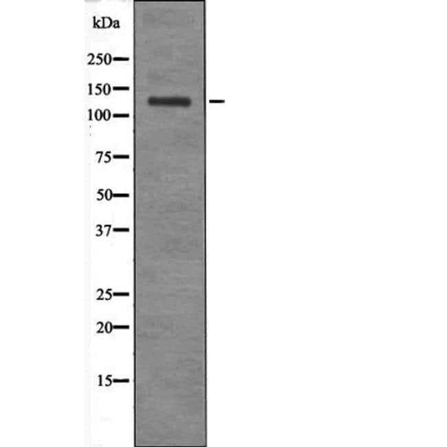 Phospho-JAK2/JAK3 (Tyr966, Tyr939) Antibody in Western Blot (WB)
