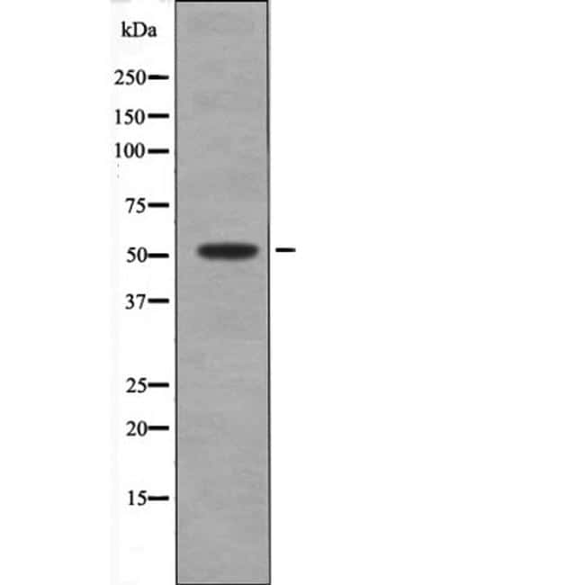 Phospho-MKNK2 (Thr24) Antibody in Western Blot (WB)