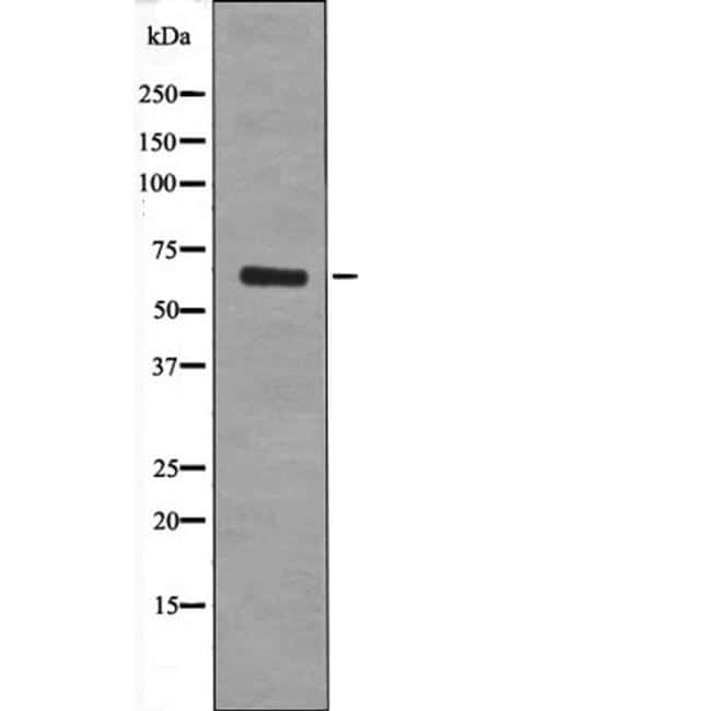 Phospho-TGFBR2 (Tyr284) Antibody in Western Blot (WB)