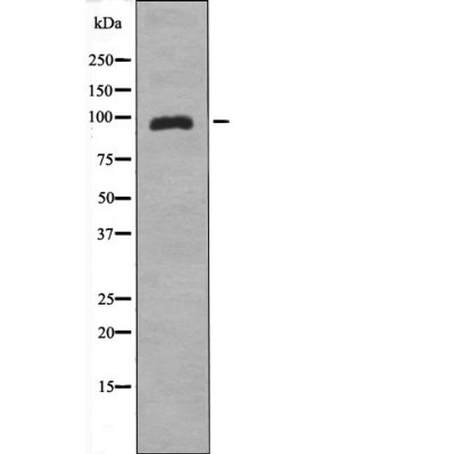 Phospho-ZAK (Ser165) Antibody in Western Blot (WB)