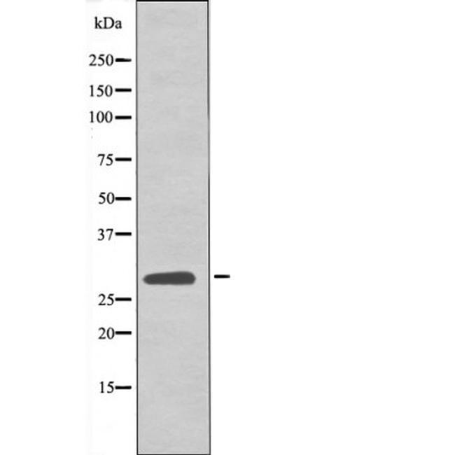 Phospho-LAT (Tyr161) Antibody in Western Blot (WB)