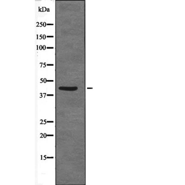 Phospho-CDX2 (Ser283) Antibody in Western Blot (WB)