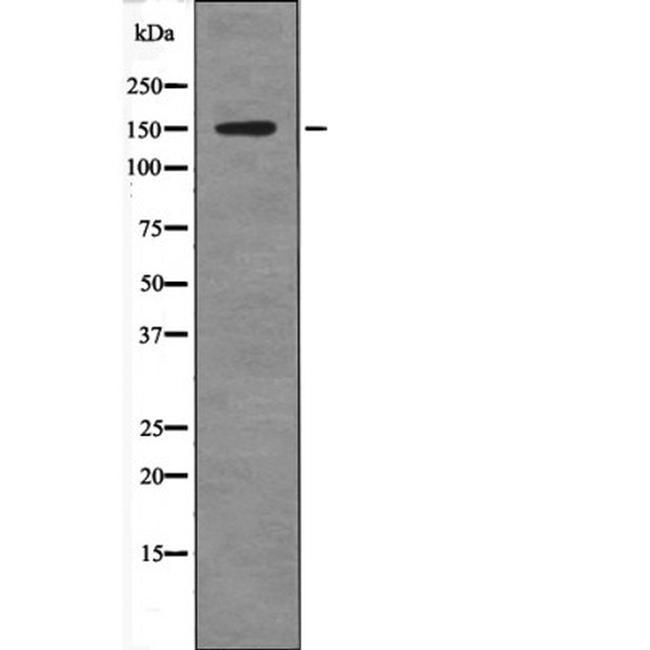 Phospho-Claspin (Ser30) Antibody in Western Blot (WB)