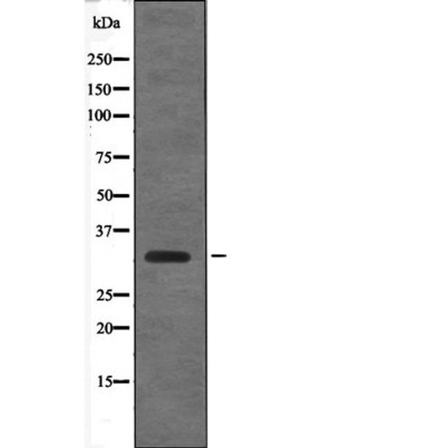 Phospho-Cyclin D1 (Thr288) Antibody in Western Blot (WB)