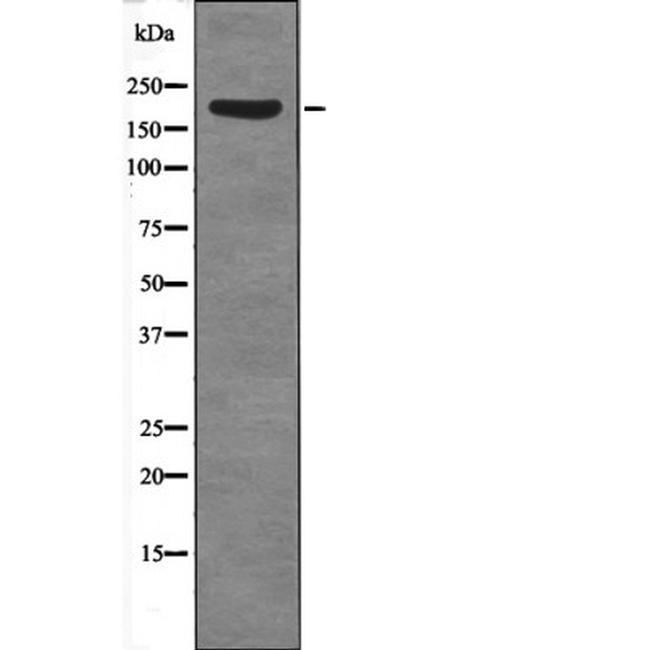Phospho-SRC1 (Thr1179) Antibody in Western Blot (WB)