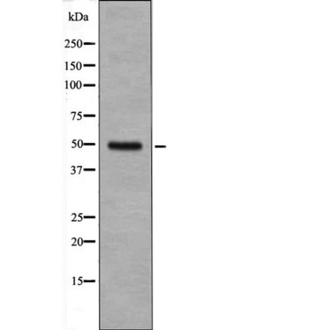 Phospho-Cyclin E (Ser399) Antibody in Western Blot (WB)