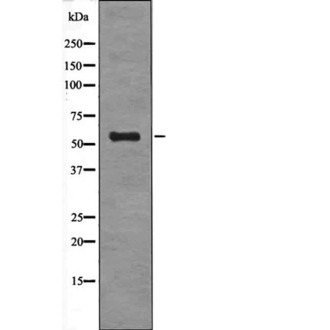 Phospho-DOK2 (Tyr139) Antibody in Western Blot (WB)