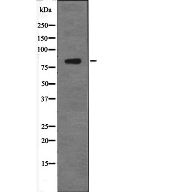 Phospho-GRK2 (Tyr86) Antibody in Western Blot (WB)