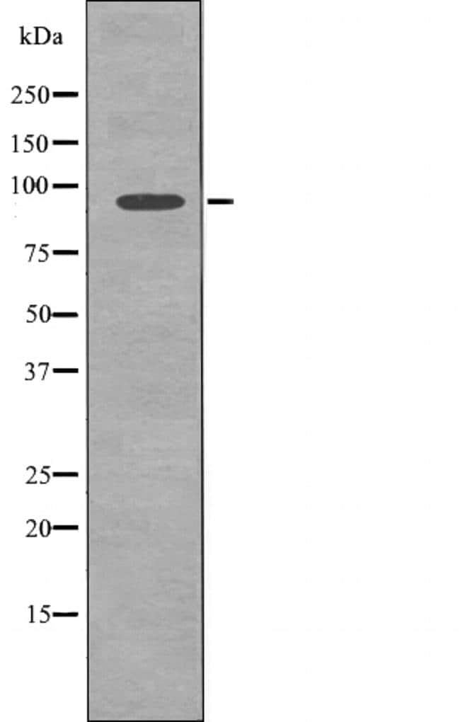 Phospho-FGFR3 (Tyr577) Antibody in Western Blot (WB)