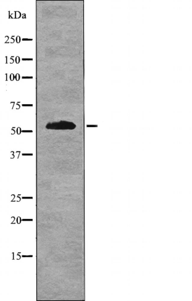 Phospho-IRF7 (Ser477) Antibody in Western Blot (WB)
