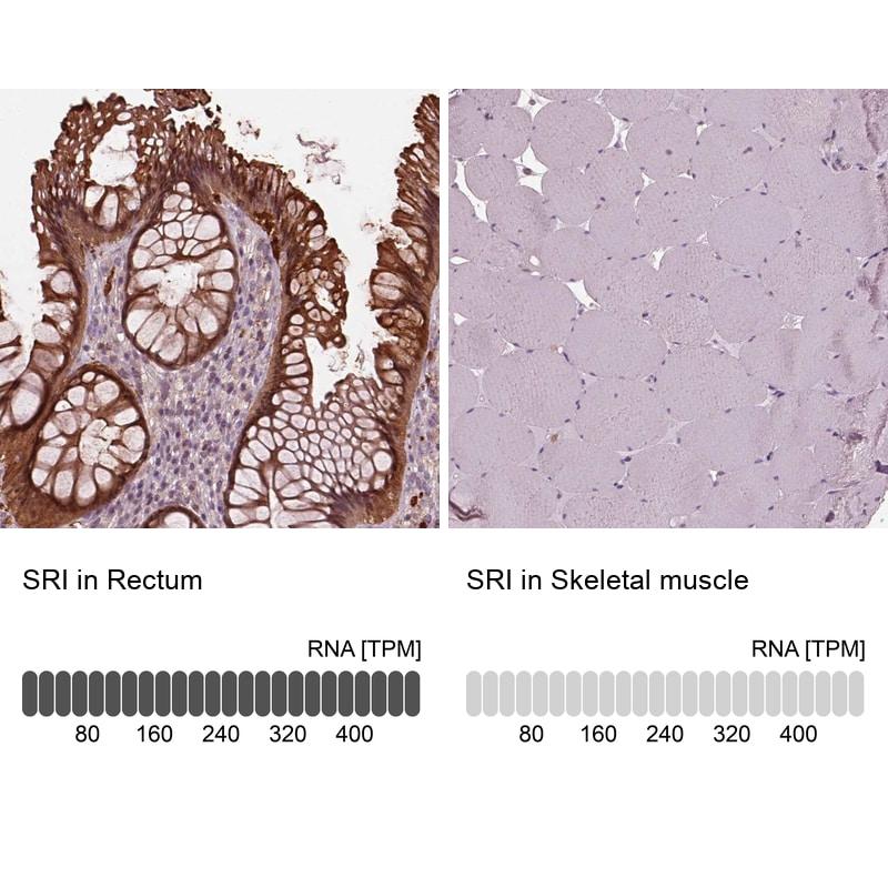 Sorcin Antibody in Relative expression