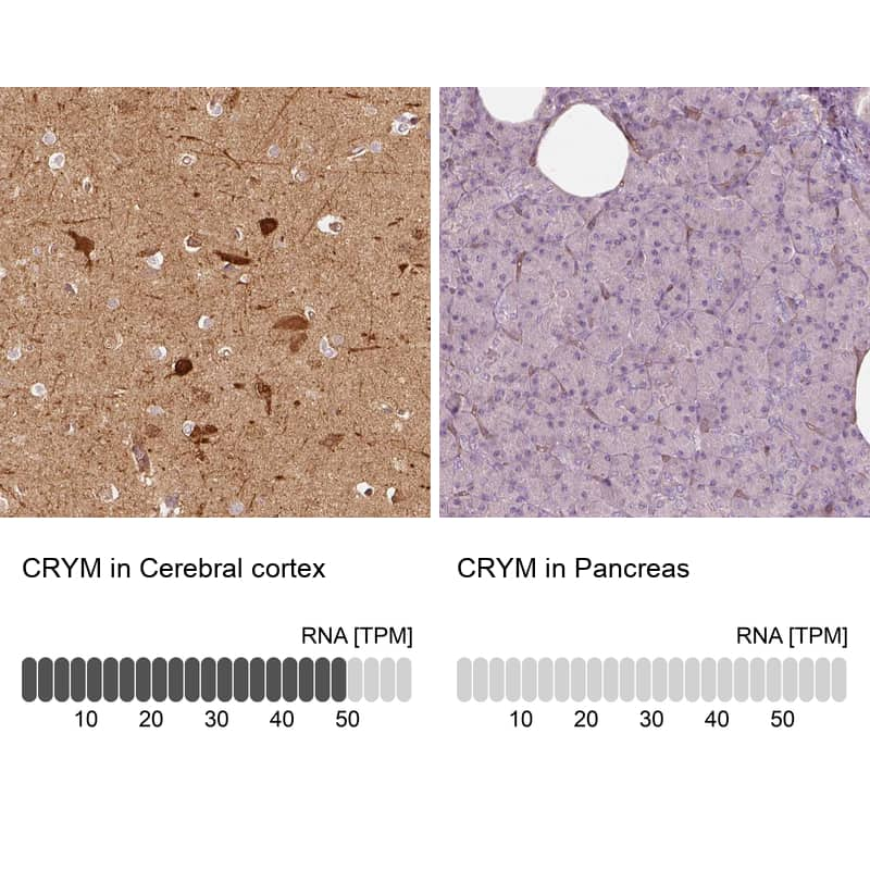 CRYM Antibody in Relative expression