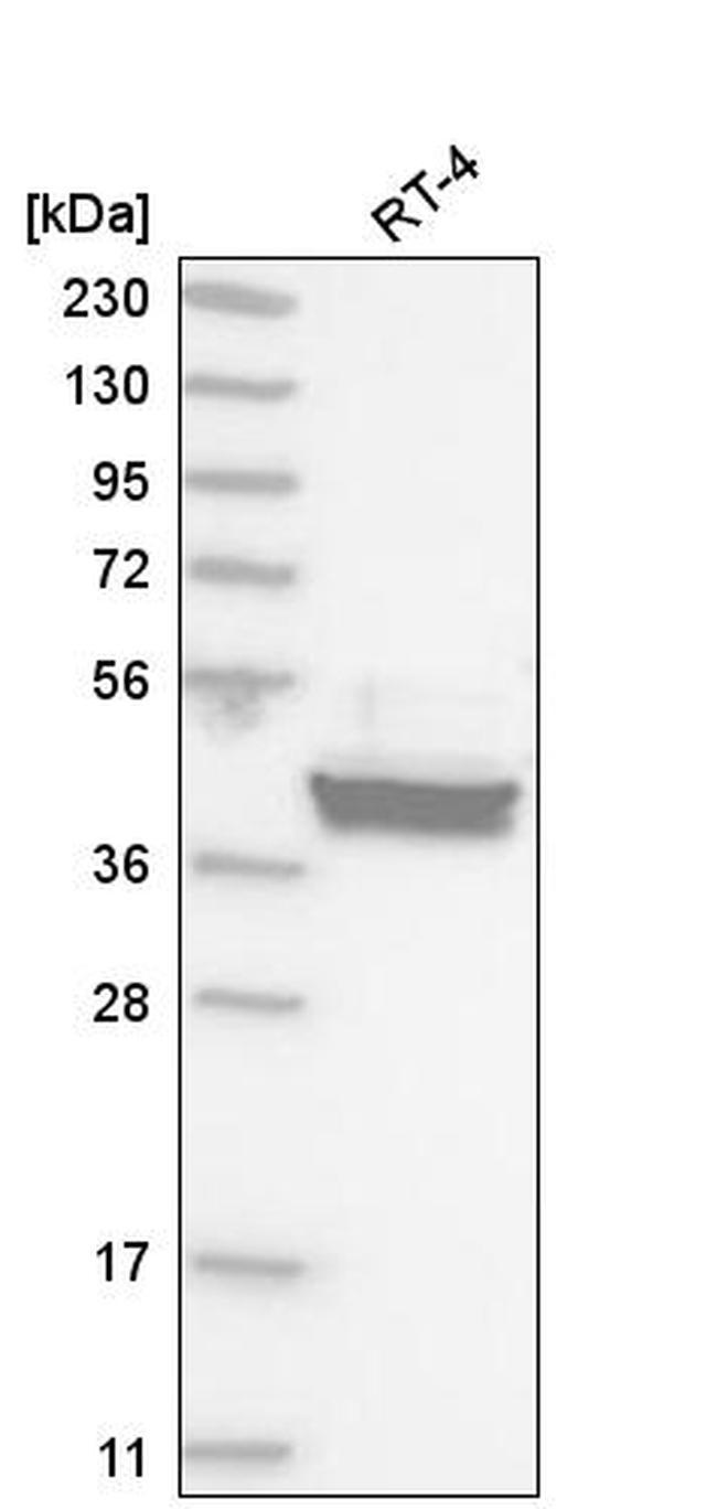LZIP Antibody in Western Blot (WB)