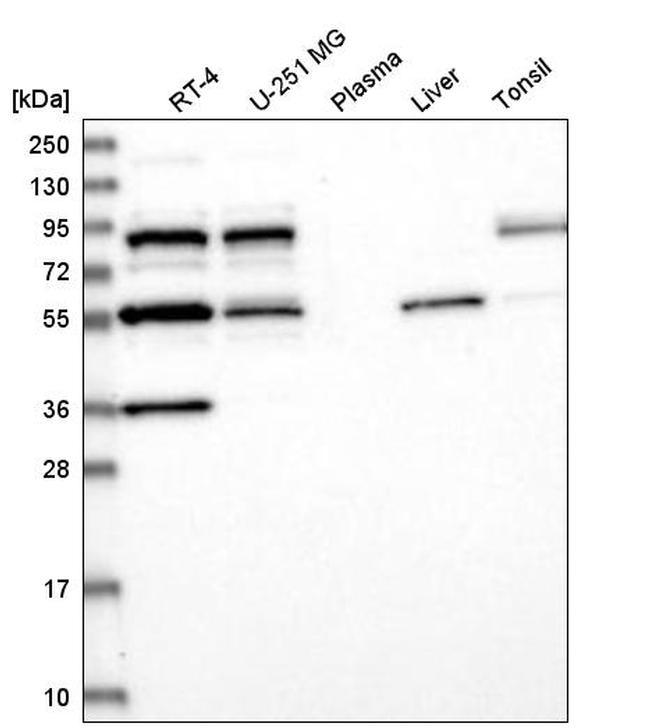 SFRS12 Antibody in Western Blot (WB)