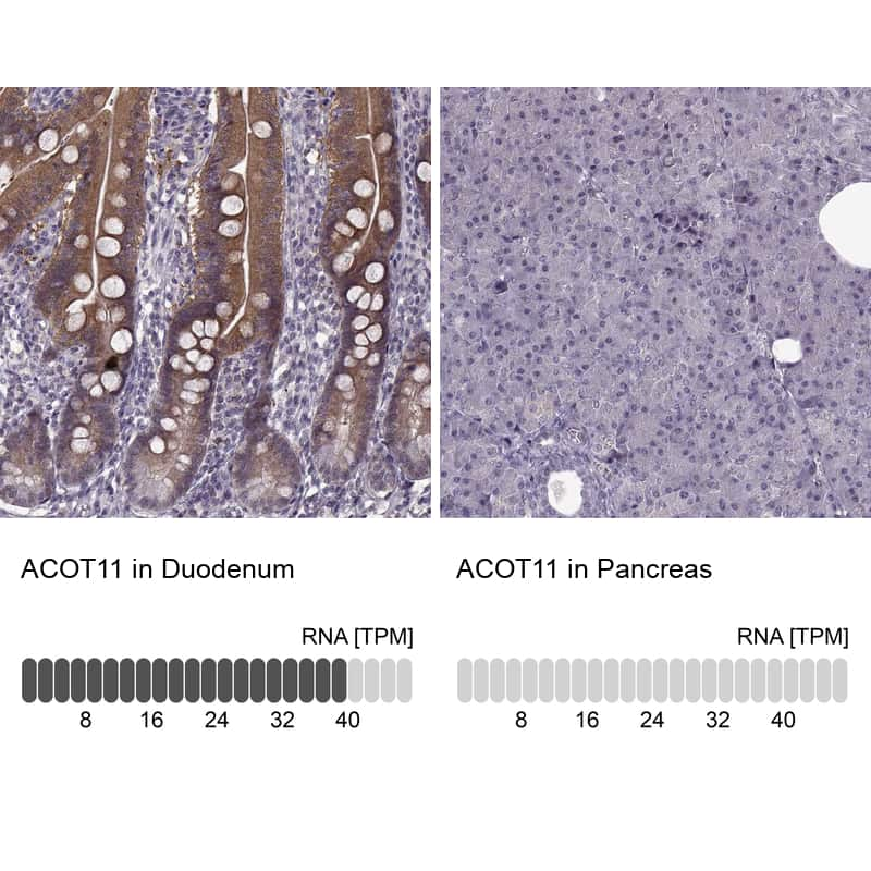 ACOT11 Antibody in Relative expression