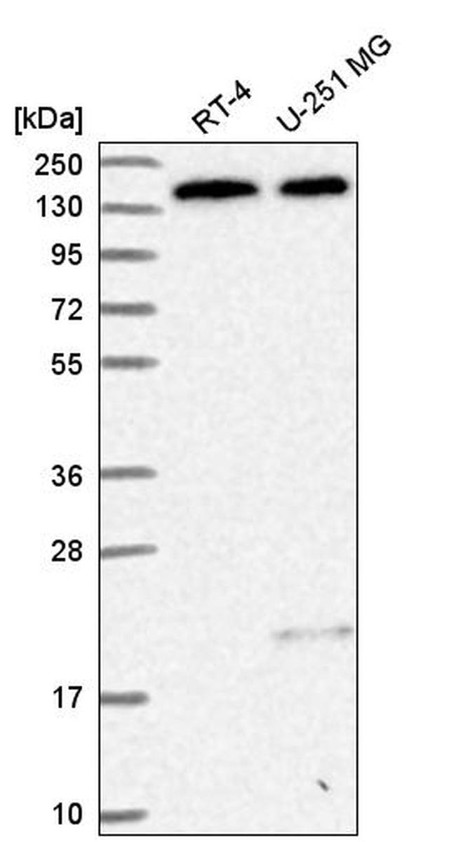 DHX38 Antibody in Western Blot (WB)