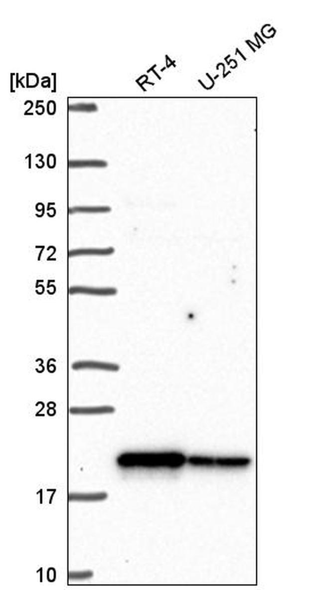 CHCHD2 Antibody in Western Blot (WB)