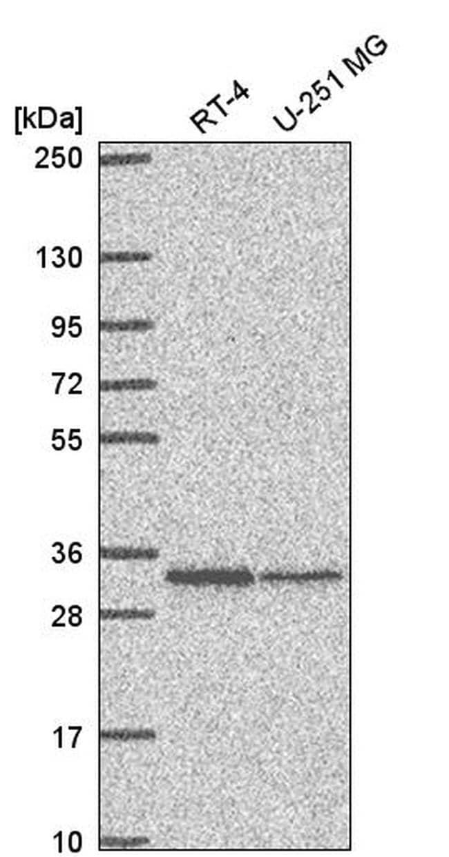 TMEM81 Antibody in Western Blot (WB)