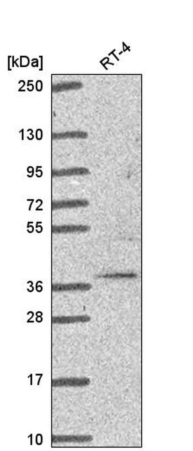 TRIM27 Antibody in Western Blot (WB)