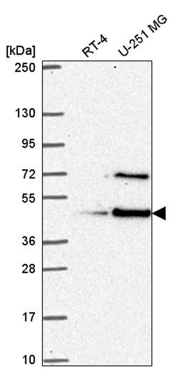 LUC7L Antibody in Western Blot (WB)