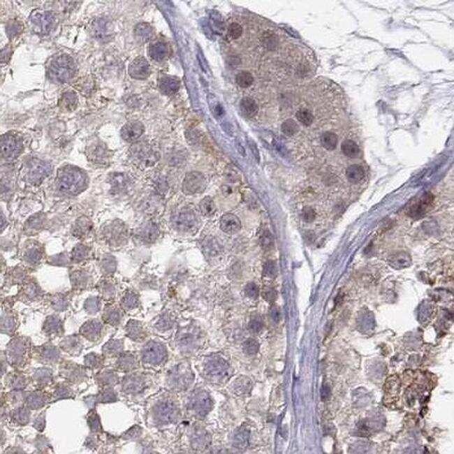 PKP2 Antibody in Immunohistochemistry (IHC)