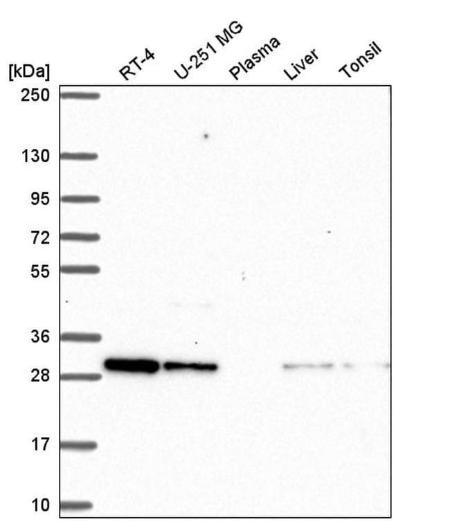 CXXC5 Antibody in Western Blot (WB)