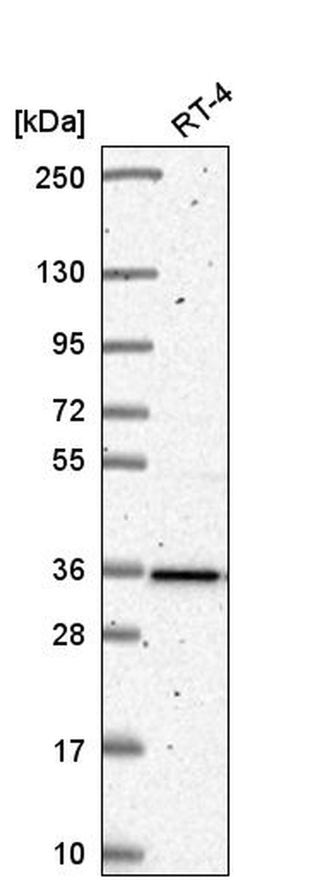 HNRNPA0 Antibody in Western Blot (WB)