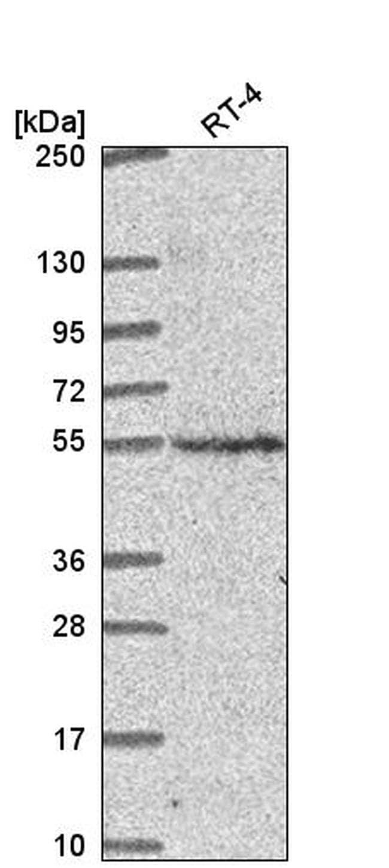 CNNM2 Antibody in Western Blot (WB)