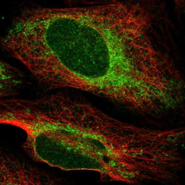 PTPLAD1 Antibody in Immunofluorescence (IF)